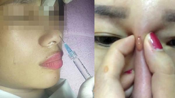 Bé gái 13 tuổi bị m ù sau khi gi ấu mẹ đi n âng mũi trả góp