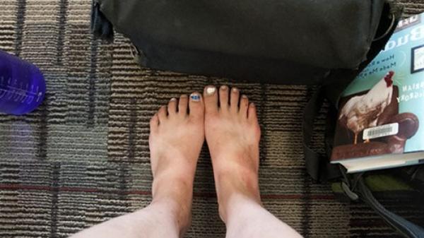 Đi chân trần qua máy quét an ninh sân bay khiến cơ thể nhiễm ổ dịch