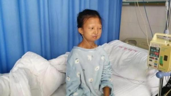 Cô gái chỉ còn da bọc xương vì 5 năm nhịn ăn nuôi em bị b ệnh